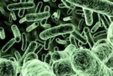 تحقیق تاثیر انواع موسیقی بر رشد باکتری